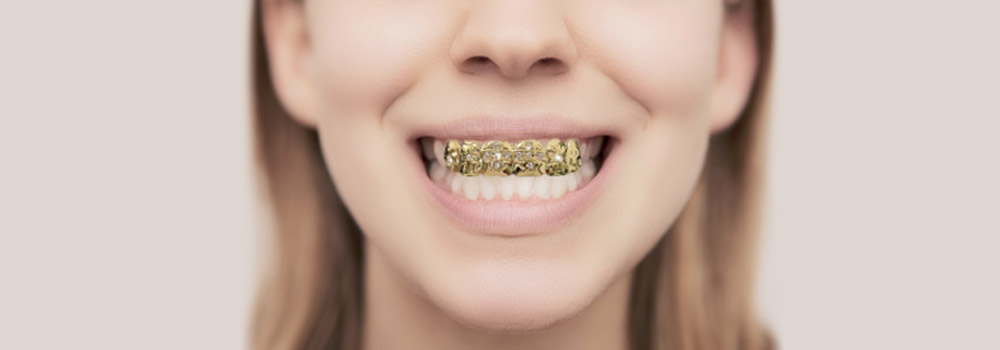 Dental Grills / Grillz: Are They Safe?