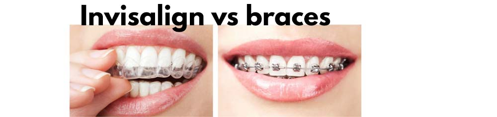 Clear Braces Help to Retain the Teeth