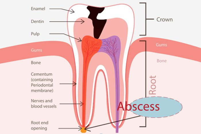 Tooth Abscess Home Remedy