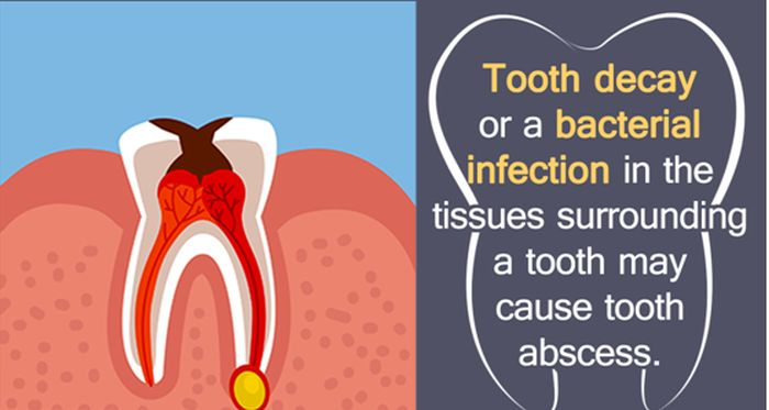Antibiotics for Tooth Infection