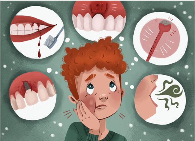 Antibiotics for Tooth Infection 2