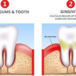 How to treat Gingivitis 2