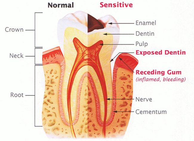 Tooth Sensitive to Cold 2