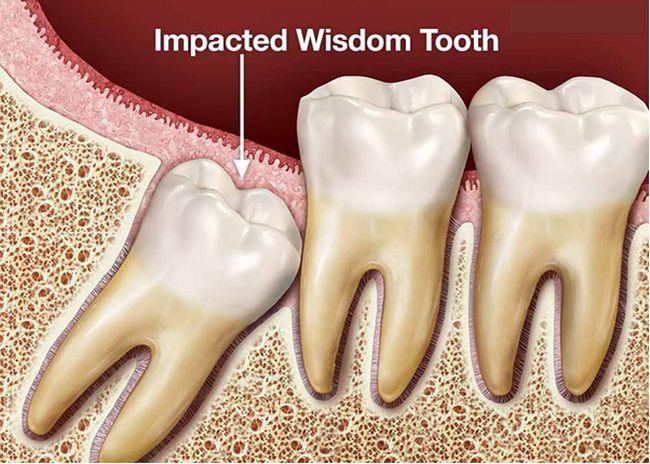 When do Wisdom Teeth come in 2